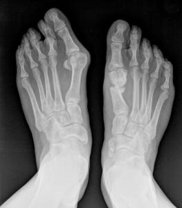 Alluce Valgo Adulto Radiografia Pre_Op