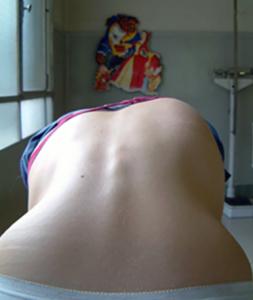 Scoliosi foto