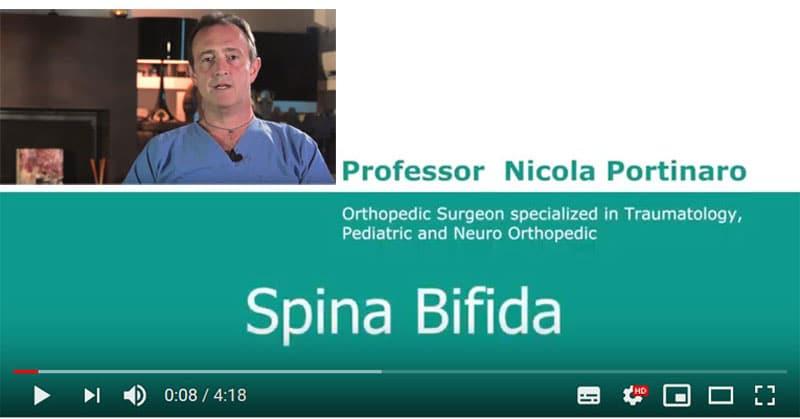 Spina Bifida Video Nicola Portinaro Chirurgo Ortopedico Pediatrico