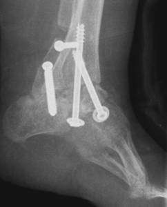 Spina Bifida Post Op Clubfoot surgery X-Ray