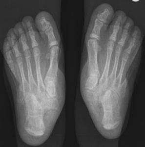 Flat Feet x-Ray Left Right