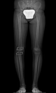 Dismetria Radiografia Post-Op
