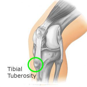 Osgood Schlatter Disease Tibial Tuberosity Image