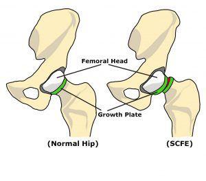 Immagine Epifisiolisi dell'anca